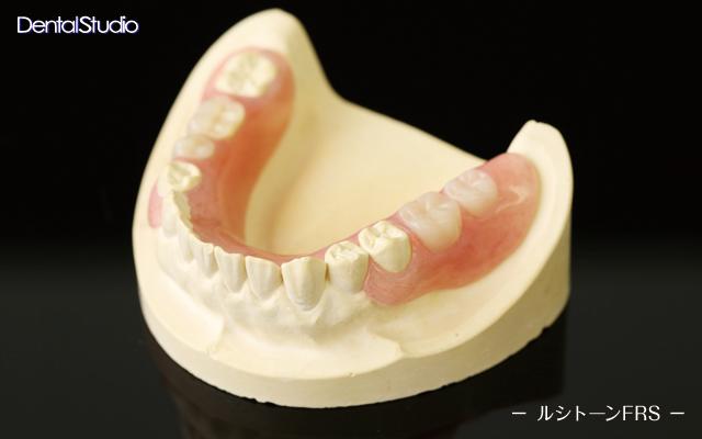ルシトーンFRS(義歯)